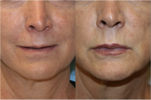 Lip Augmentation & Injection
