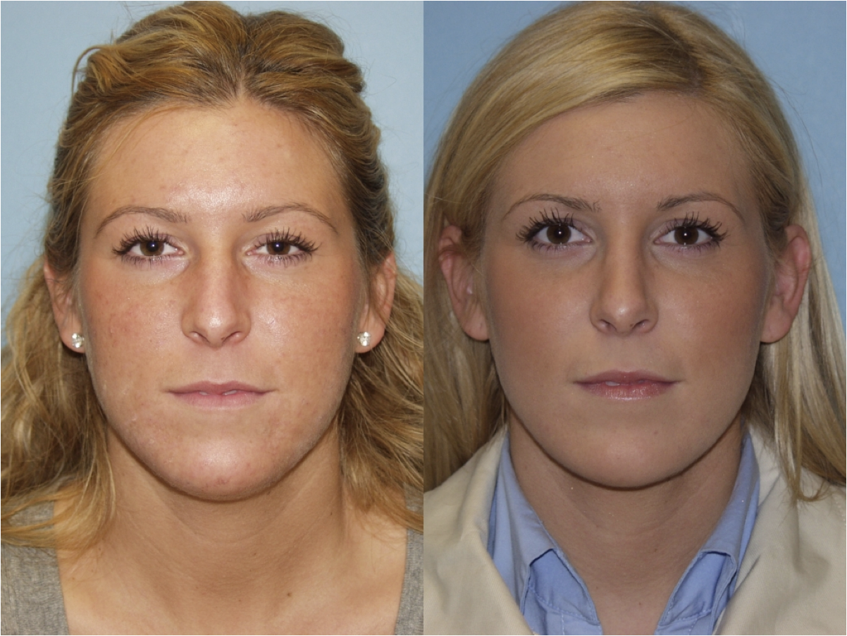Wilmette Nose Job Surgeon