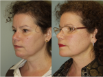 Chin and Submental Liposuction