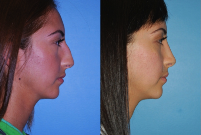 Northbrook Rhinoplasty Doctors