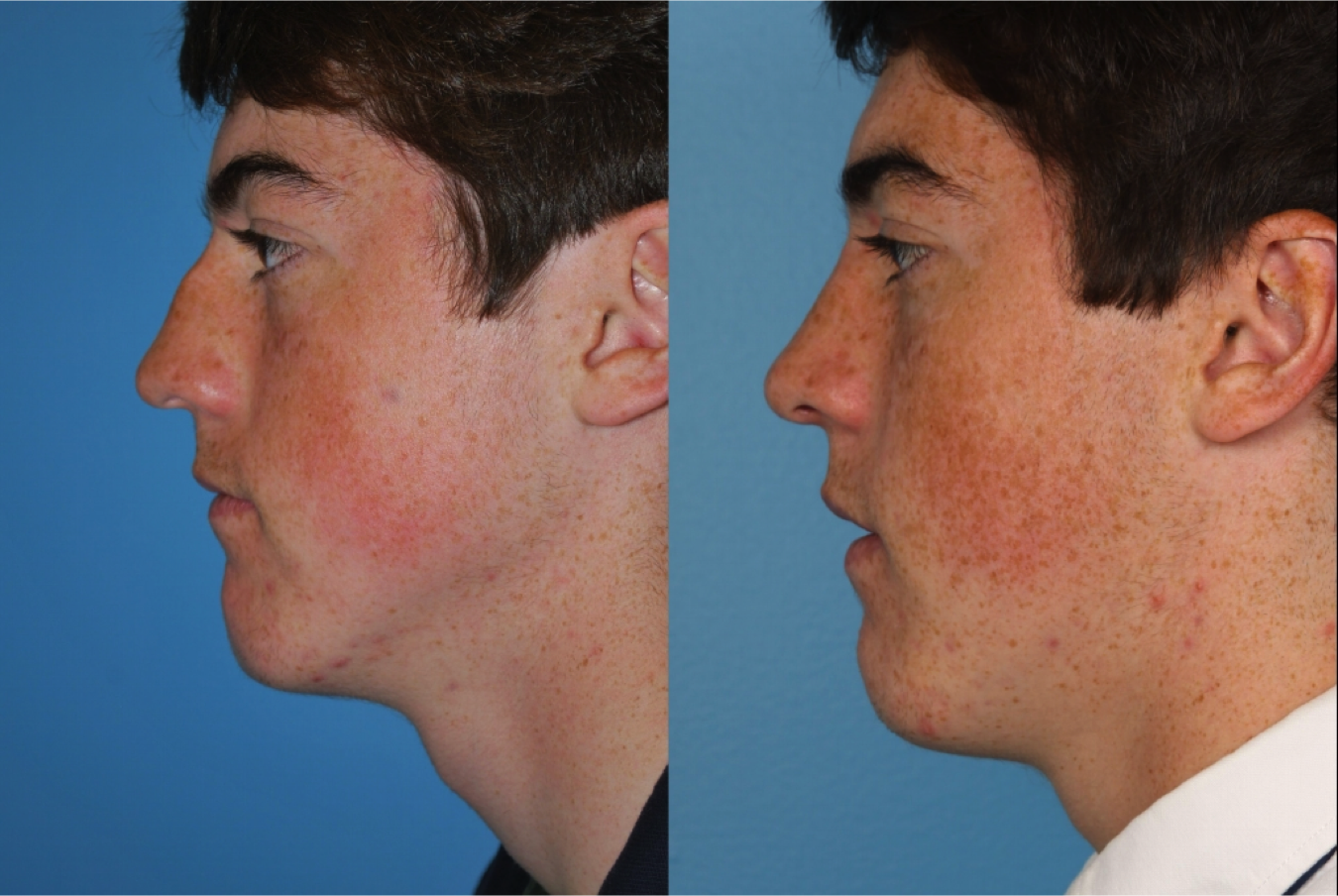 Oak Brook Rhinoplasty Doctors