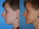 Rhinoplasty (Nose Job)