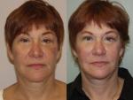 Lip Augmentation & Injection