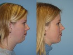 Before & After Pictures | Chin & Submental Liposuction Chicago, IL
