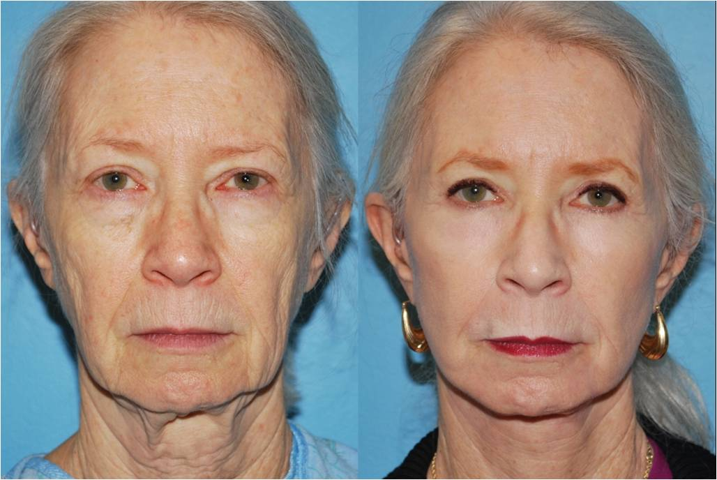 Before Amp After Gallery Chemical Peel Dr Sidle