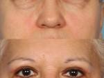 Blepharoplasty (Eyelid Surgery)