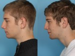 Otoplasy (Ear Pinning)