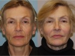 Botox and Injectables