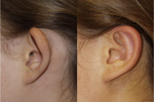 Otoplasy (Ear Pinning)