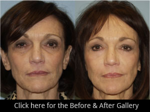 Chicago Eyelid Lift Surgery