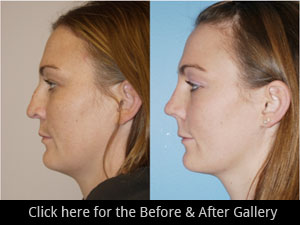 Revisions Rhinoplasty Surgery Chicago, IL