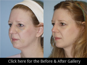 Rhinoplasty Chicago, IL | Nose Job Surgery
