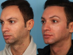 Hairline Reduction