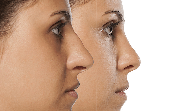 Know about rhinoplasty surgery
