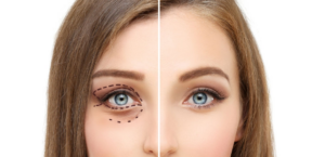 Opening Your Eyes to the Benefits of Eyelid Surgery