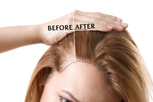 Everything You Need to Know About Forehead Reduction and Hairline Lowering Surgery