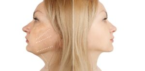Enhance Your External Appearance With a Neck Lift